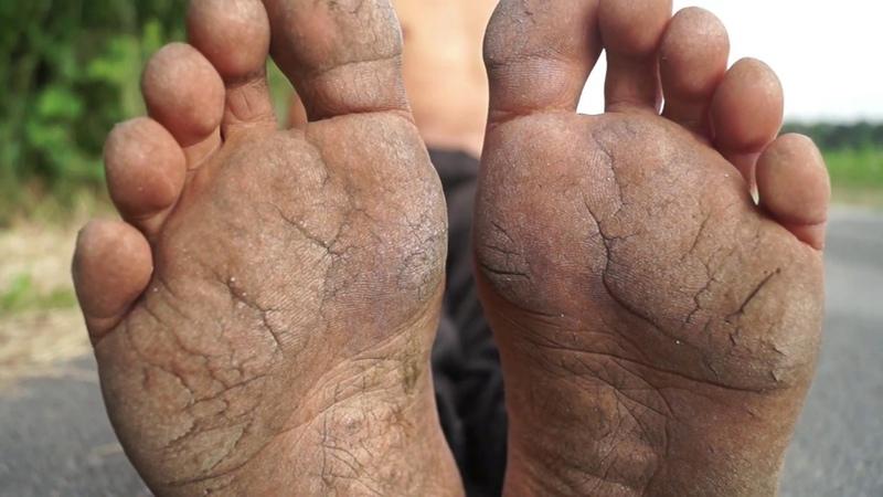 22 Years Barefoot 22 Jahre Barfuß