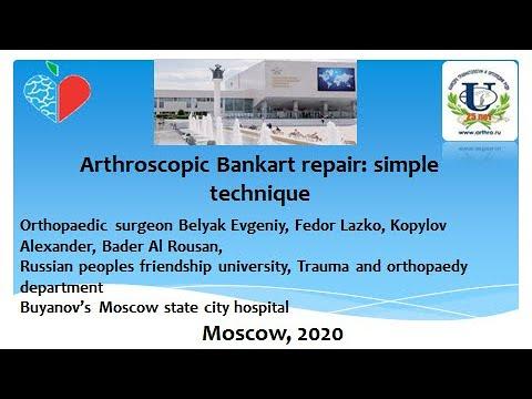 Артроскопическое восстановление повреждения Банкарта наша простая техника